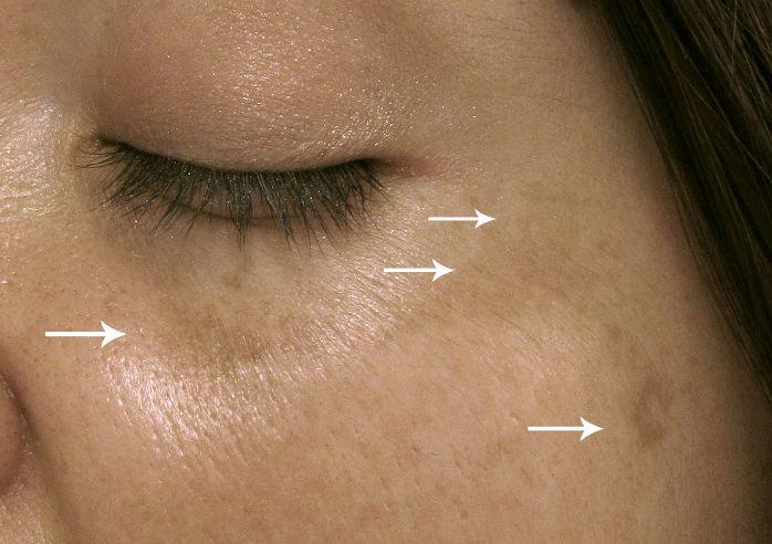 Важные сигналы. Что кожа говорит о вашем здоровье