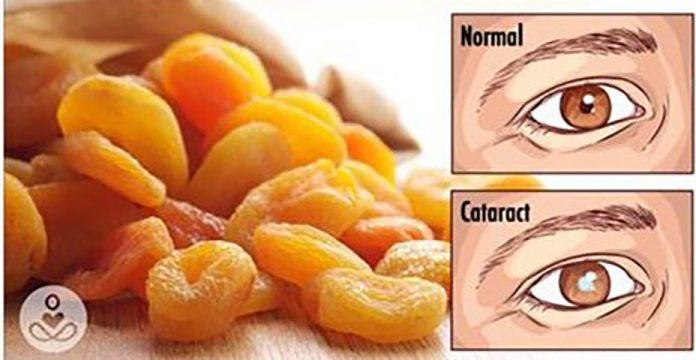 Глаза. 5 способов лучше заботиться о вашем зрении!