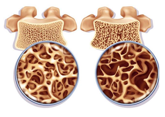 Укрепи кости и остеопороза не будет! Используй 3 сильнейшие продукта + рецепт древних греков!