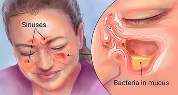 Вы сможете быстро избавиться от синусита, насморка, простуды и вирусов с помощью этого простого метода!
