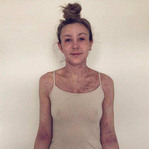 Женщина избавилась от ужасной экземы став вегетарианкой
