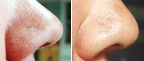 Яичная маска-пленка 3 в 1: подтяжка, укрепление и очищение.