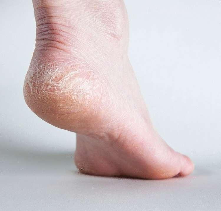 18 признаков плохого здоровья, о которых расскажут ваши ступни
