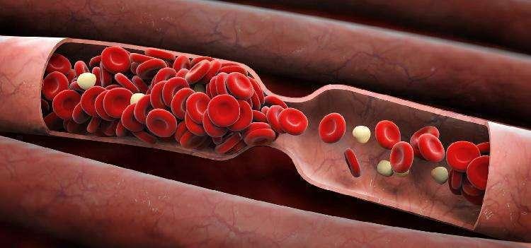 11 легких упражнений, которые помогут избежать застоя в крови