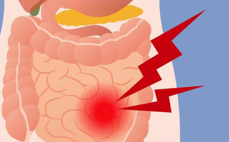 Вирусный энтерит: Симптомы и лечение